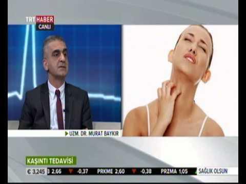Dr. Murat Baykır Kaşıntı ile ilgili TRT Sağlık Olsun programında..