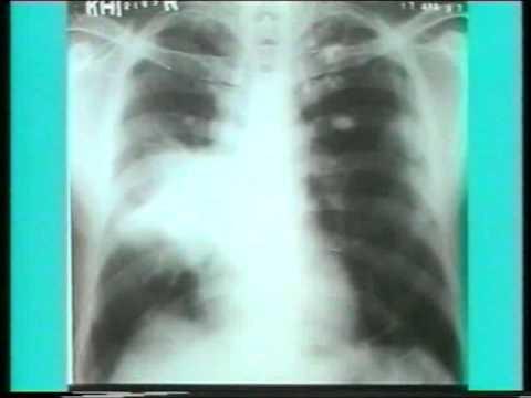 X-Ray reading (radiology) Part1