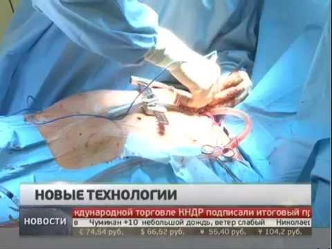 Замена сердечного клапана. Новости. GubermiaTV.
