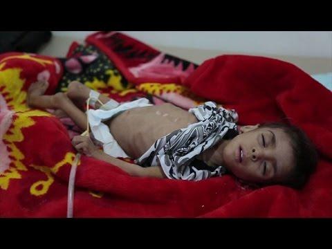 الكوليرا قد تتجاوز 300 ألف إصابة في اليمن في أيلول/سبتمبر