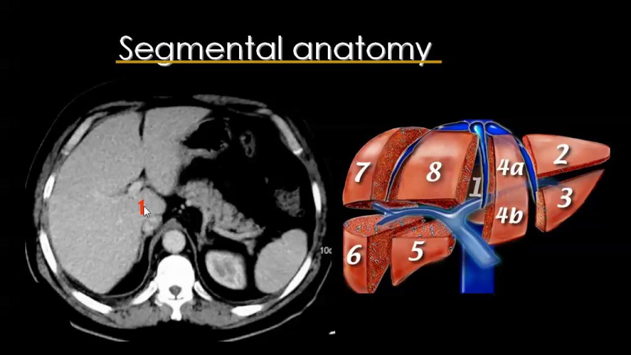 CT Liver Prof Dr. Mamdouh Mahfouz - YouTube