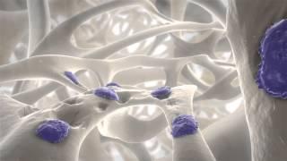 Artrita reumatoida(, 2015-10-27T12:01:45.000Z)