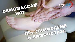 Самомассаж ног при лимфостазе и лимфедеме. Лечение лимфостаза дома. Лечение отеков. Массаж лимфедема
