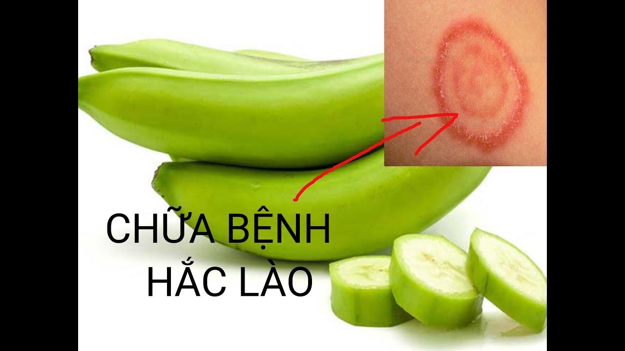 Mẹo chữa hắc lào bằng chuối xanh đúng cách