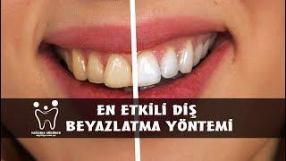 En Etkili Diş Beyazlatma Yöntemi