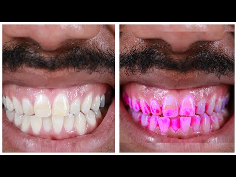 People See How Gross Their Teeth Really Are
