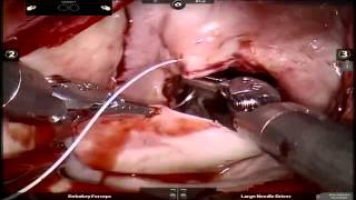 Robotic Surgery for Hypertrophic Cardiomyopathy
