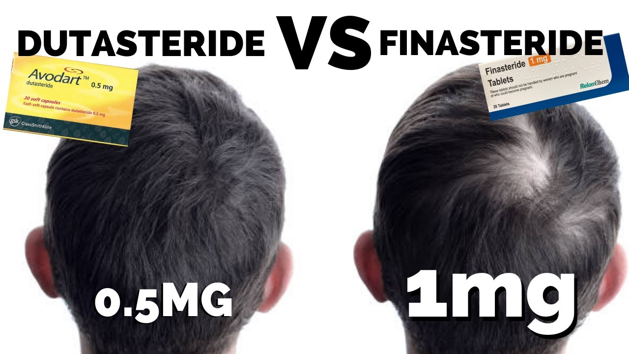 Dutasteride Mega Guide Better Than Finasteride Youtube