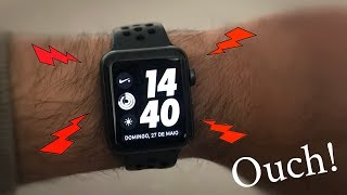 Apple Watch causing wrist pain ? Should you return it? (SOLVED)