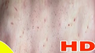 Cystic Acne، Pimples And Blackheads Extraction Treatment On Face !! | (PART 16)