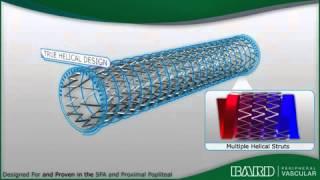 SFA Superficial Femoral Artery Animation - Bard Peripheral Vascular