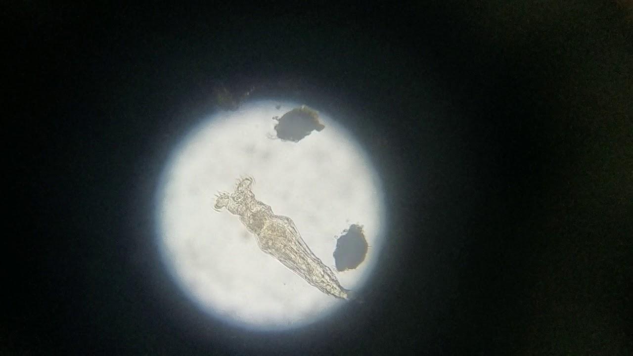 Microscopic Organism Eating | Ep. 3