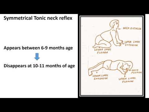 Tonic Neck Reflex (Asymmetrical and Symmetrical) | Neonatal Reflex | Pediatrics