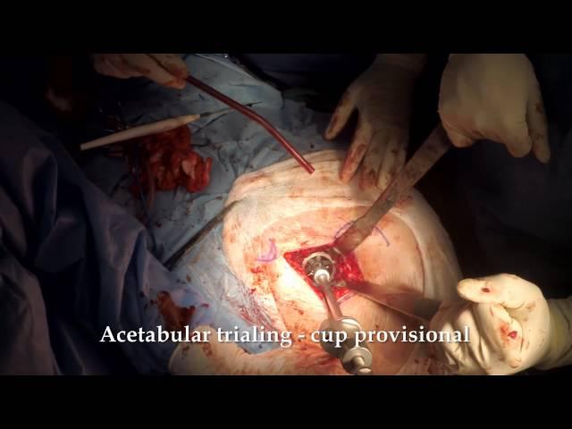Anterolateral MIS (ALMIS) Total Hip Arthroplasty - Dr. N. Roidis