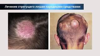 Стригущий лишай на голове - лечение, причины, симптомы, народные средства, рецепты, фото