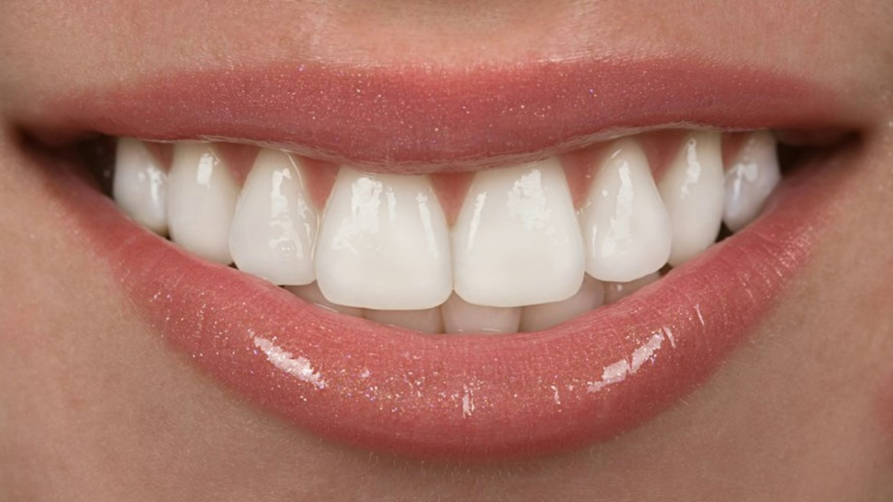 Crowns or veneers 84