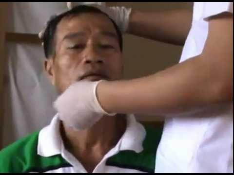 Lương y Kha chữa bệnh bằng Nhân Điện ở Nam Định
