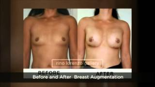 Breast Augmentation Manila Philippines by The Renewed You Aesthetic Thumbnail