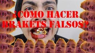 ¿CÓMO HACER BRACKETS FALSOS?- NICOLAS ARRIETA