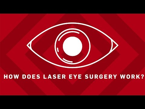 How Does Laser Eye Surgery Work? | Brit Lab