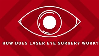 How Does Laser Eye Surgery Work? - Brit Lab