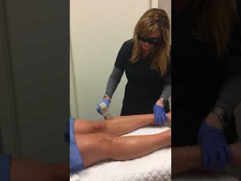 Sciton Laser Hair Removal At Lux ~ A Medical Spa