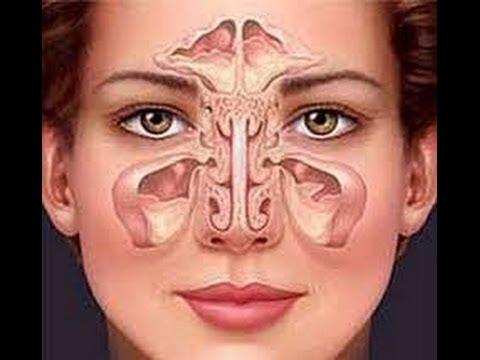 Sinusitis como quitar la sinusitis