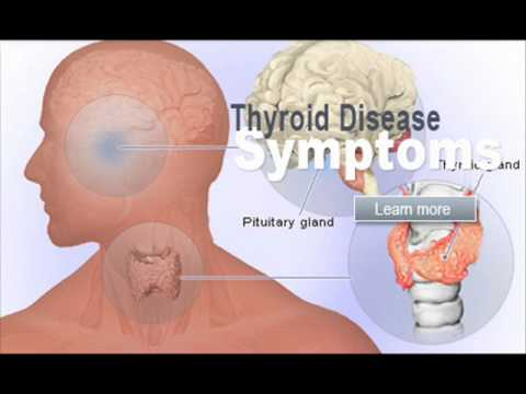 Medicine For Thyroid Disease Health Education Infection