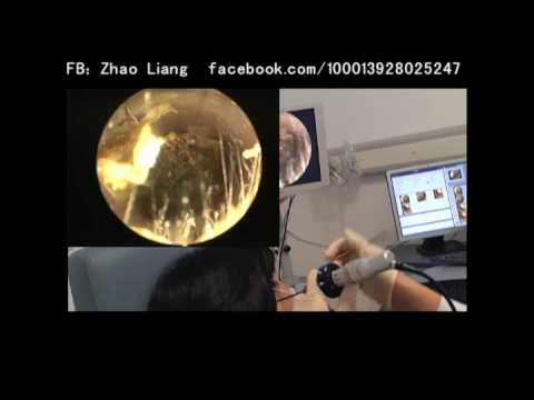 Endoscopic earwax removal by Dr. Zhao EP.2 (a middle-aged woman)