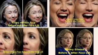 Hillary Clinton Face Before and After Face Lift #481 e