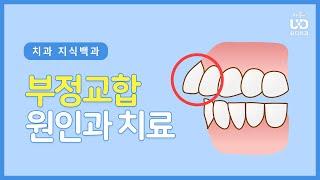 부정교합은 왜 생길까? 치아교정 시기와 치료법 |#유디…