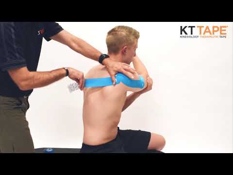 KT Tape: Shoulder Dislocation Taping