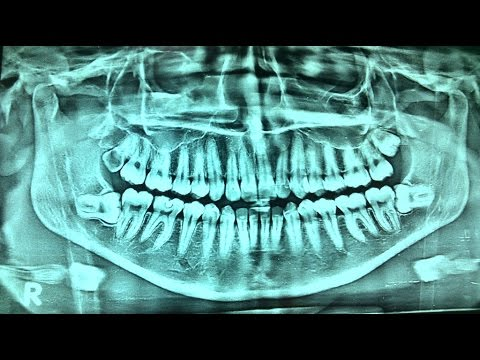 DENTAL X-RAY (OPG) AND DENTAL DISEASES - Dr Paulose FRCS (ENT)
