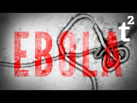13 Surprising Facts About: Ebola