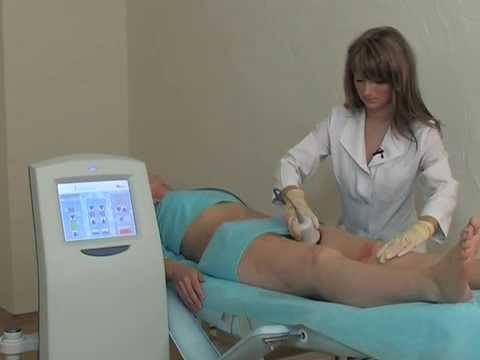 Ультразвуковая безоперационная липосакция (кавитация) на аппарате TRIWOKS