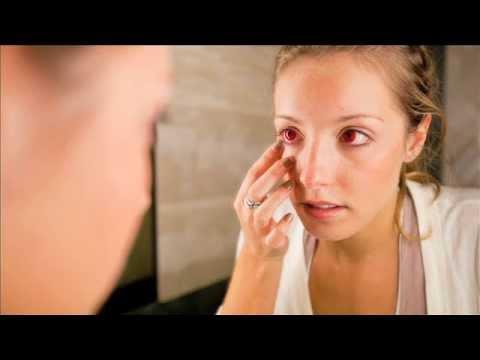 Contact Lenses: No Prescription No Way - YouTube
