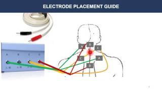 Video BCR Therapie Tutorial 7 Electrode Placement Guide download MP3, 3GP, MP4, WEBM, AVI, FLV Juni 2018