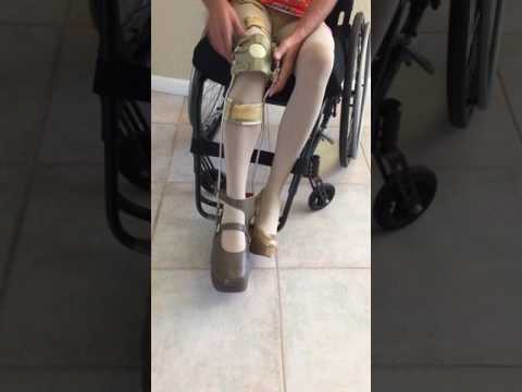 Polio Woman Leg Brace wheelchair high heel 5