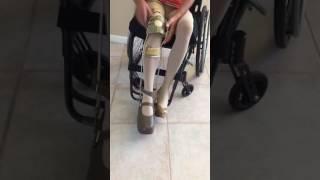 Polio Woman Leg Brace wheelchair high heel 5