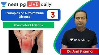 NEET PG: Examples of Autoimmune Disease | Rheumatoid Arthritis | Unacademy NEET PG |  Dr. Anil S. screenshot 3