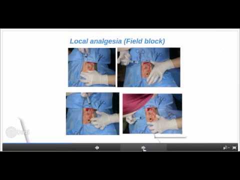 umbilical hernia in a calf
