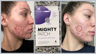 Using Micropoint for Dark Spots Lets Put It To The Test | Mighty Patch |