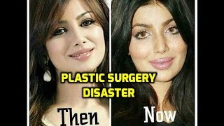 Ayesha Takia PLASTIC SURGERY Went WRONG| Ayesha Takia's Beautiful FACE Distroyed