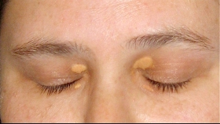 How To Eliminate Cholesterol Deposits Around Your Eyes, Easy and Naturally