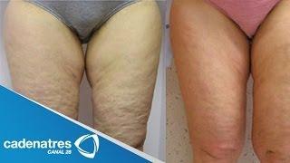 ¿Cómo quitar la celulitis?  /  ¡AÚN PUEDES ELIMINAR LA CELULITIS!  / How to remove cellulite? thumbnail