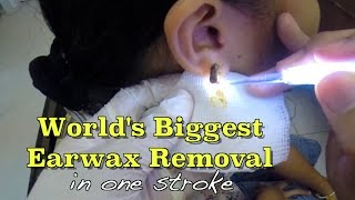 World's biggest earwax removal in one stroke