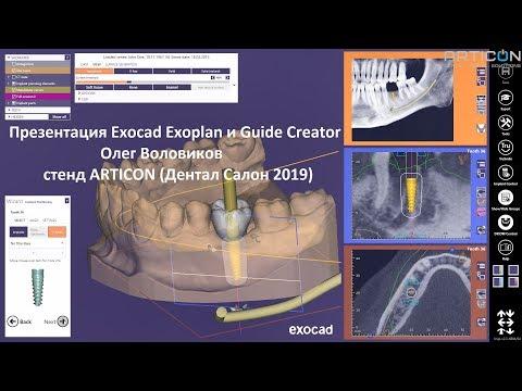 Презентация Exocad Exoplan и Guide Creator от Олега Воловикова на стенде ARTICON (Дентал Салон 2019)