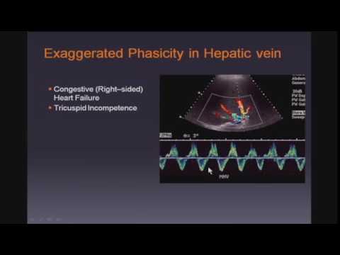 Doppler Ultrasound of the Liver and Portal Hypertension