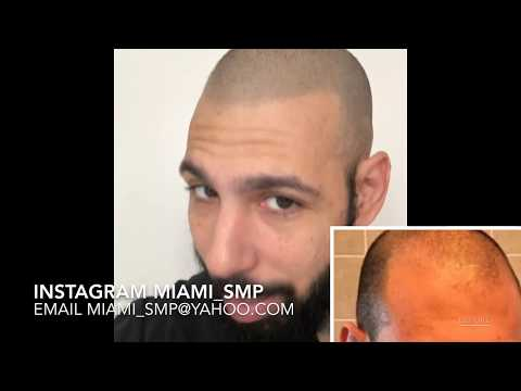 Smp Scalp Micropigmentation Time For A Touch Up