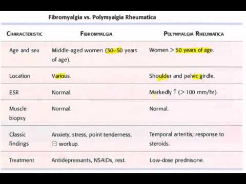 Fibromyalgia vs Polymyalgia rheumatica USMLE CK Step 2